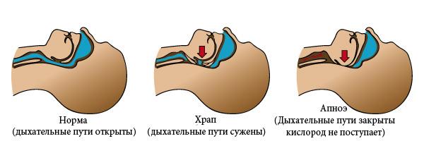 Норма-храп-апноэ
