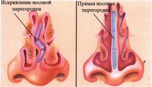 Искривление носовой перегородки может привести к храпу